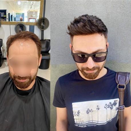 caucasian hair system